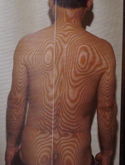 椎間板ヘルニア   モアレトポグラフィー(治療前)