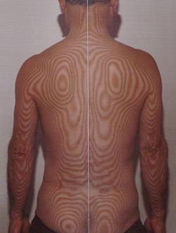 椎間板ヘルニア   モアレトポグラフィー(治療後)