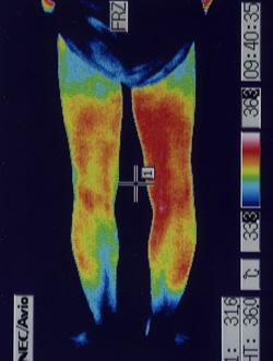椎間板ヘルニア   サーモグラフィー(治療後)